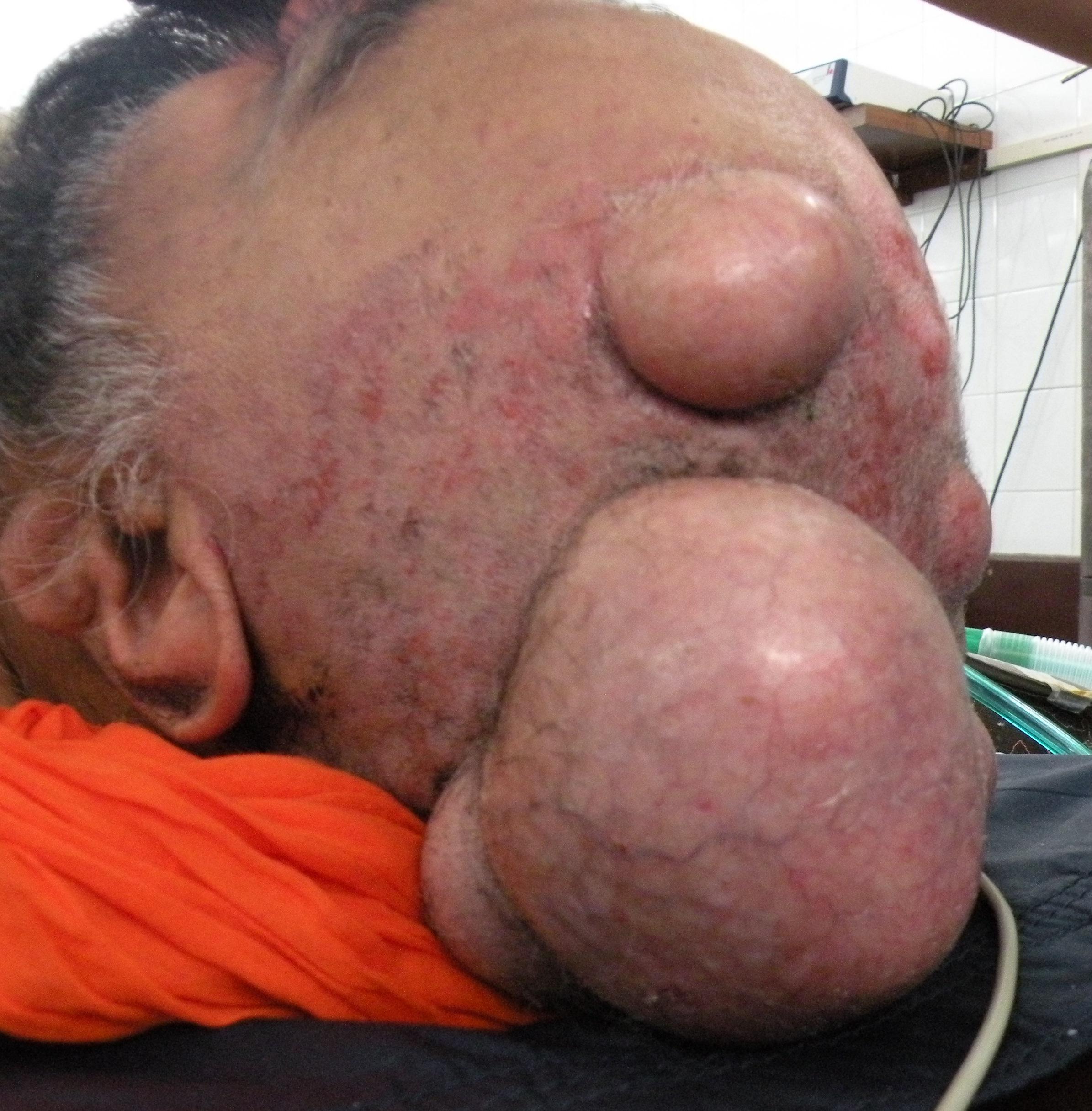 Den richtigen anal sebaceous cyst chochita