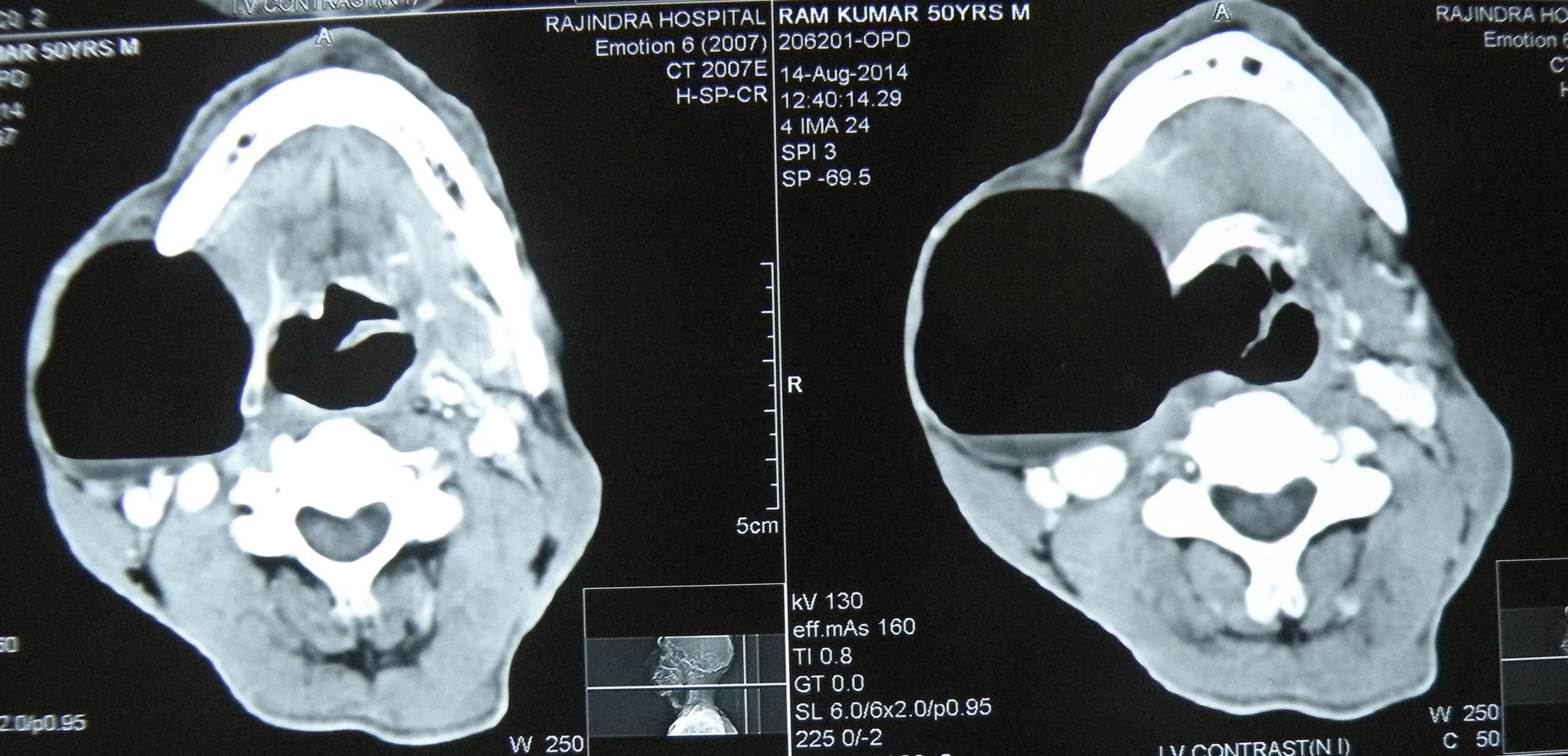 A Laryngocele And A Mirizzi Syndrome  Rare Encounters